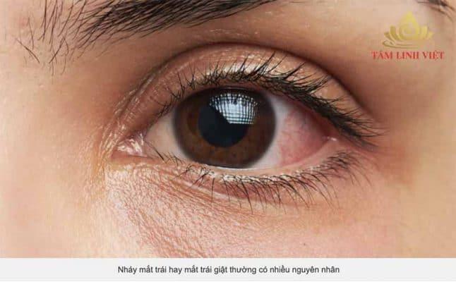 Nháy mắt trái hay mắt trái giật thường có nhiều nguyên nhân