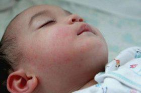 Cách phân biệt giữa sởi và phát ban để chăm bé đúng cách